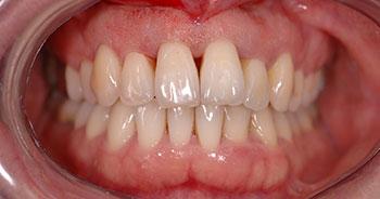 probleme implant dentaire